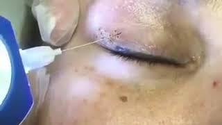 Wholesale Eyelid Lifting Soft Laser Plasma Pen Sweep Freckle  spot Removal Plasma Pen Hot Selling screenshot 5