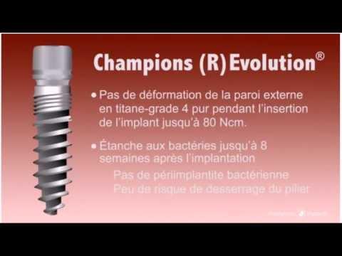 scheiding schoenen geweldige prijzen laatste mode Champions Implants 01 - YouTube