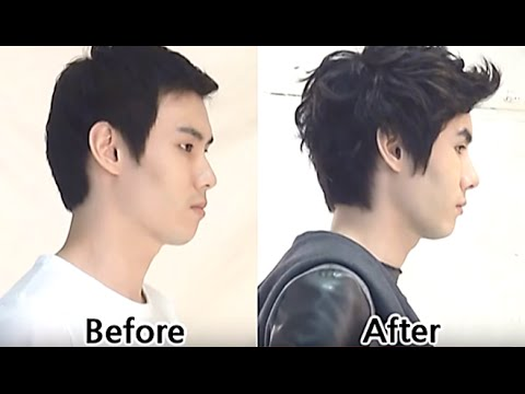 facial bone surgery man plastic surgery cheekbone
