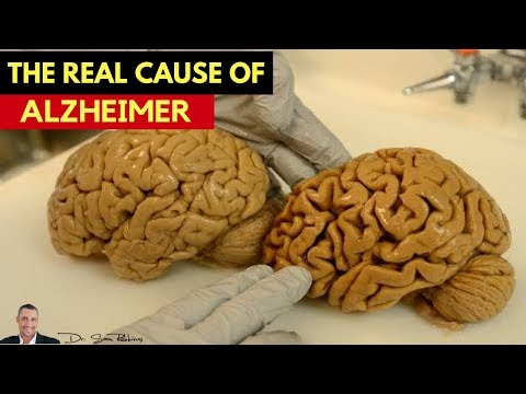 🧠 Revealed: Discover The REAL Cause Of Alzheimer's & Dementia - by Dr Sam Robbins Mp3