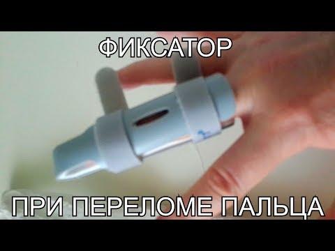 Вопрос: Как определить, сломан ли палец?