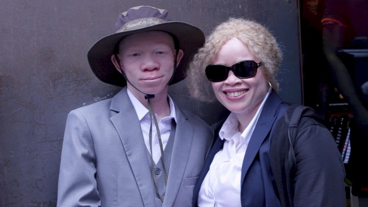 Albinism Awareness around the World