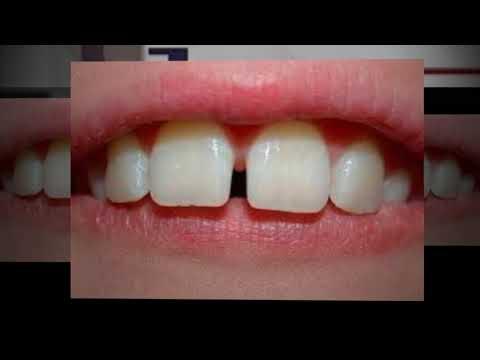 dental-lab-in-new-york---pfm-crown-lab-nyc