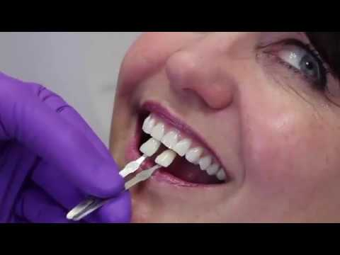 Shade Detection with CEREC Omnicam