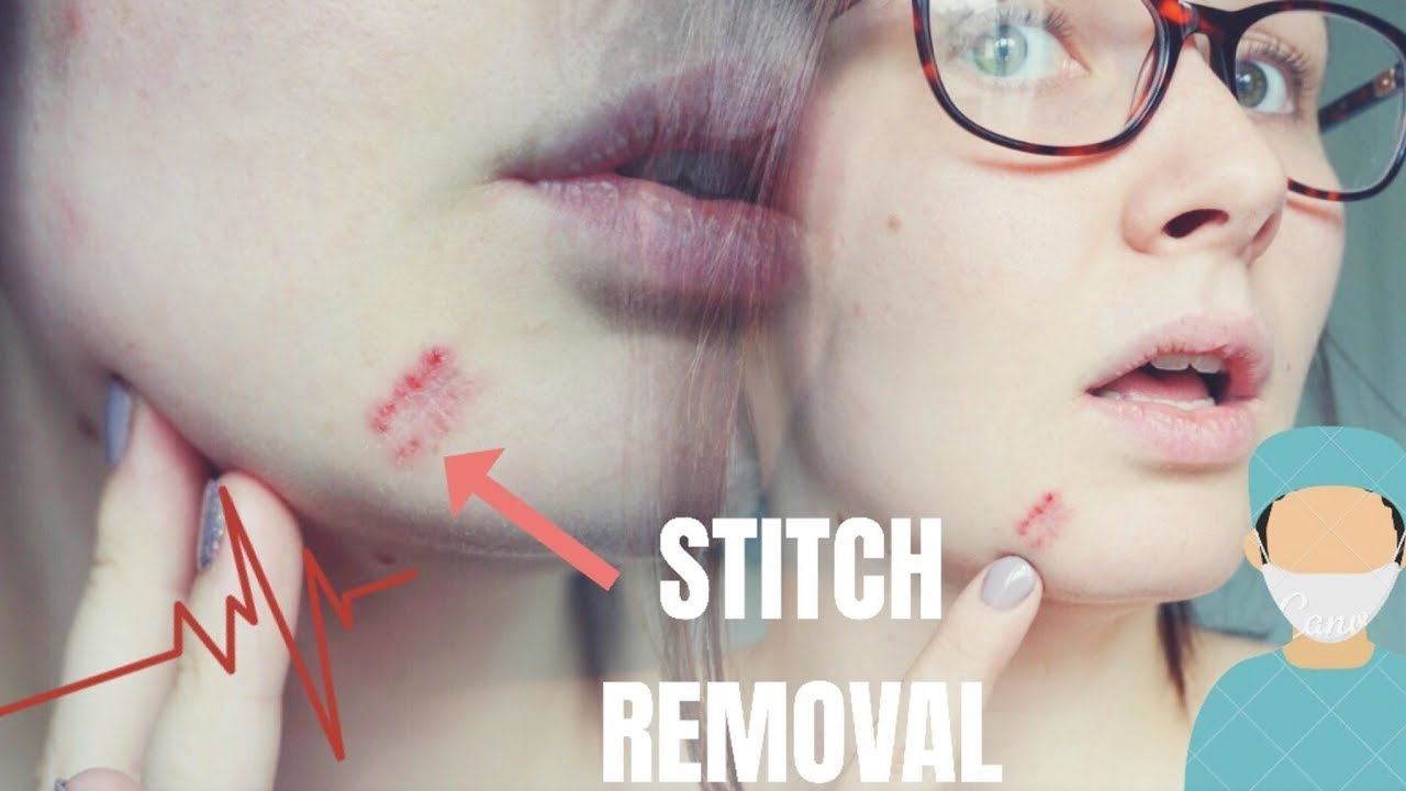 MOLE REMOVAL PART 3, REMOVING STITCHES | LIFEOFVICTORIAJANE