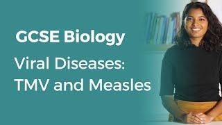 Viral Diseases: TMV and Measles | 9-1 GCSE Biology | OCR, AQA, Edexcel