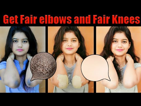 Whitening Dark Elbow and Dark Knees Overnight Naturally | 100% Natural & 100% Working | LIVE RESULTS