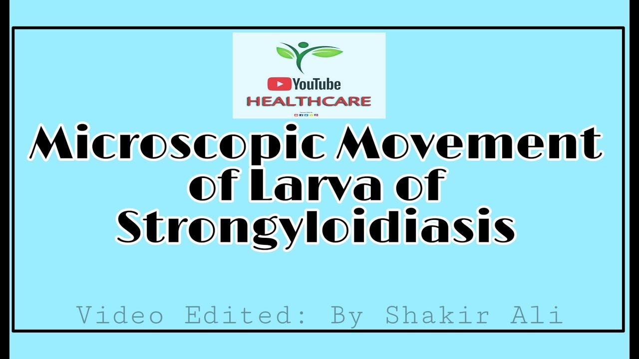 terjesztett strongyloidosis