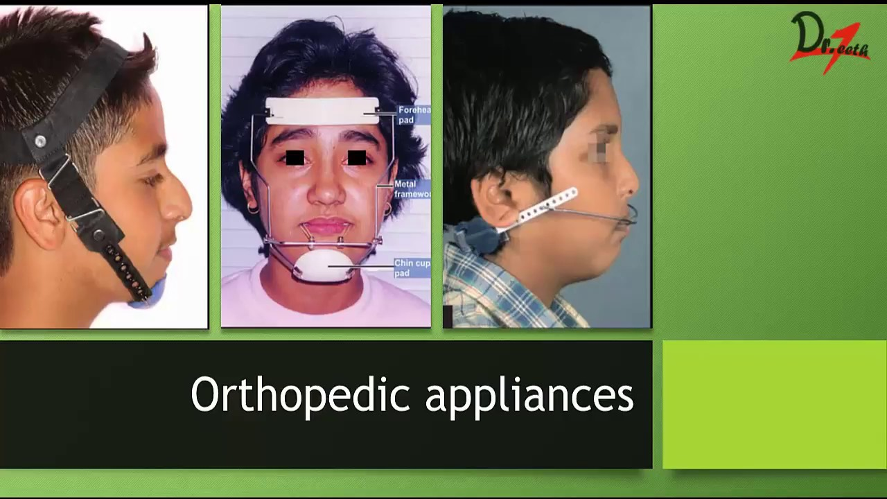 Download Orthopedic Appliances : Part I