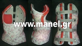 Scoliosis and kyphosis braces by Manel Medical orthopedics laboratory