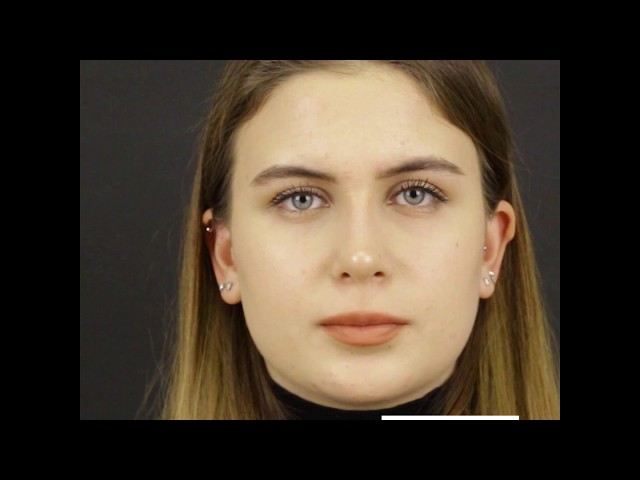 90° TAS Video | 2 Months After Closed Atraumatic Rhinoplasty