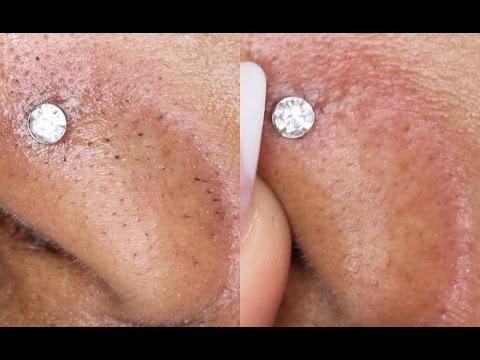 DIY How To Remove Black/White Heads ! 2 WAYS!  Queenii Rozenblad