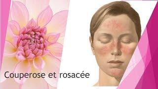 Couperose et rosacée comment soigner