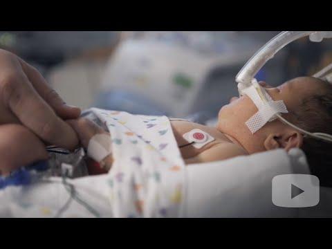 Poliklinika Harni - Balonski kateter u dušniku povećava preživljavanje kad dijafragmalna hernija blokira razvoj fetalnih pluća
