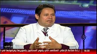 الناس الحلوة | علاج آلام العمود الفقرة مع د.يسرى الحميلي