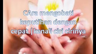 Mengatasi Keputihan -  dr. Evie Sungkar, M.Ked (OG), SpOG #infodoctic #Eviesungkar.
