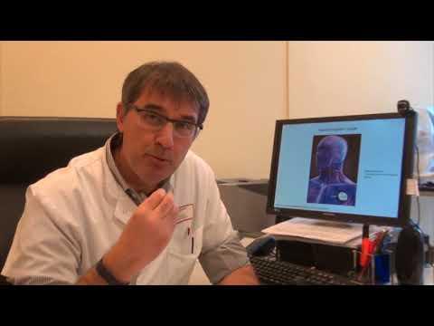 La Stimulation Du Nerf Vague Par électrode Implantée