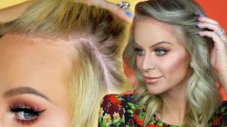 My Hairline Surgery Results | Gigi