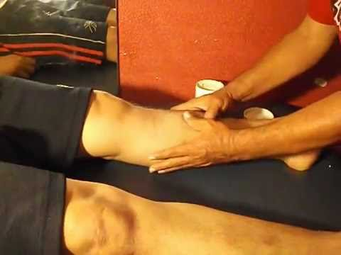 hematoma pierna tratamiento