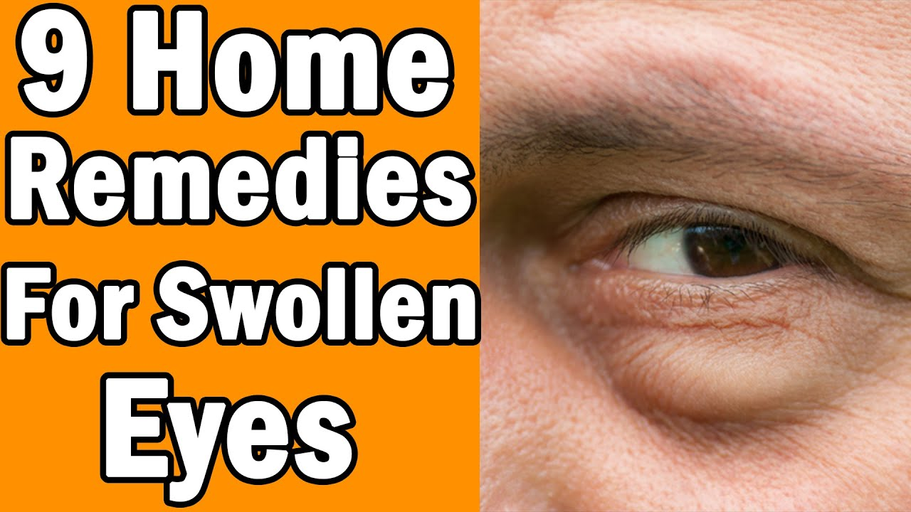 9 Home Remedies For Swollen Eyes