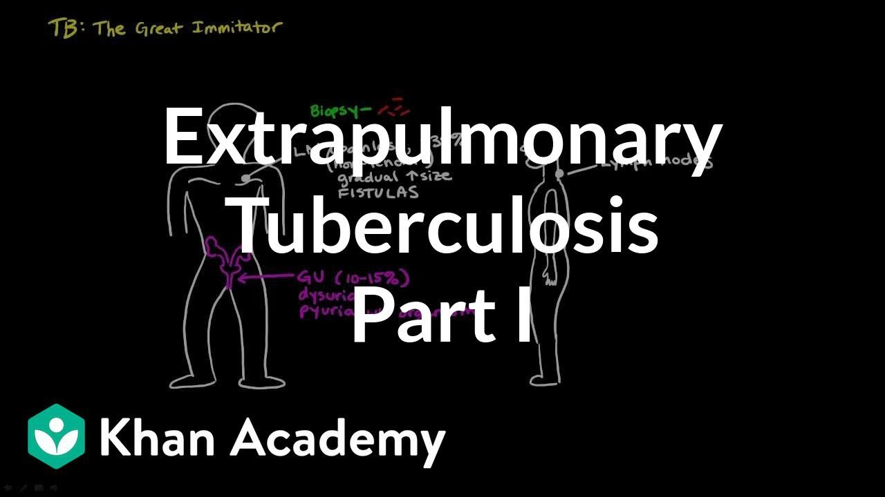 8d361e6ce87 Extrapulmonary TB (part 1) (video) | Khan Academy