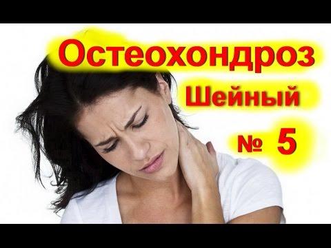 Шейный остеохондроз – симптомы, лечение, упражнения