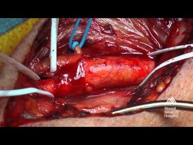 The Mount Sinai Surgical Film Atlas: Carotid Endarterectomy