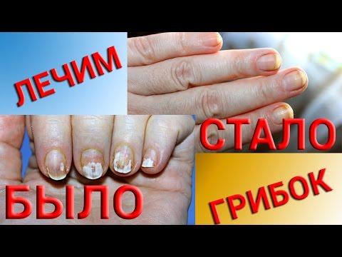 Грибок на руках: фото, симптомы, причины, лечение