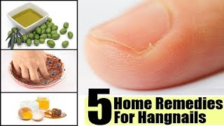 How to treat hangnails. Agnail treatment. - YouTube