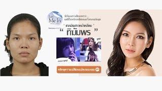 โรงพยาบาลไอดี : เณ ฑิฆัมพร พงษ์สุวรรณ Let Me In Thailand Before & After