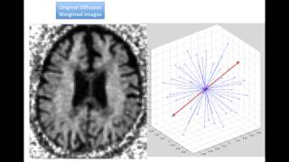 Mapping of ApoE4 Related White Matter Damage using Diffusion MRI