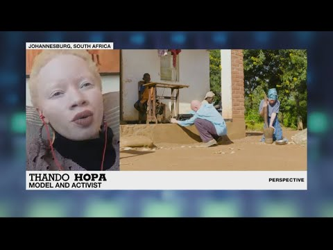 Perspective - South African model Thando Hopa on representing albinism in a positive way
