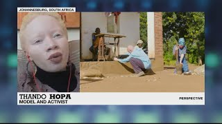 South African model Thando Hopa on representing albinism in a positive way