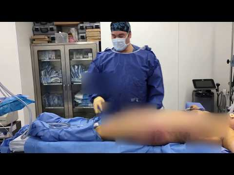 Dr. Kenneth Hughes Transfers 1800 cc of Fat per Buttock and Hip Part 2