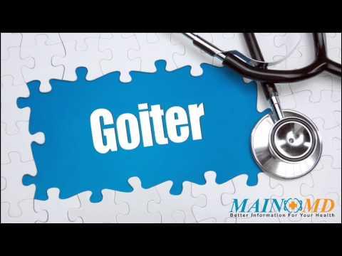 Goiter ¦ Treatment And Symptoms
