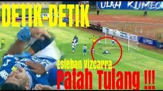 Download Video Detik-Detik Esteban Vizcarra patah tangan l Persib Bandung MP3 3GP MP4