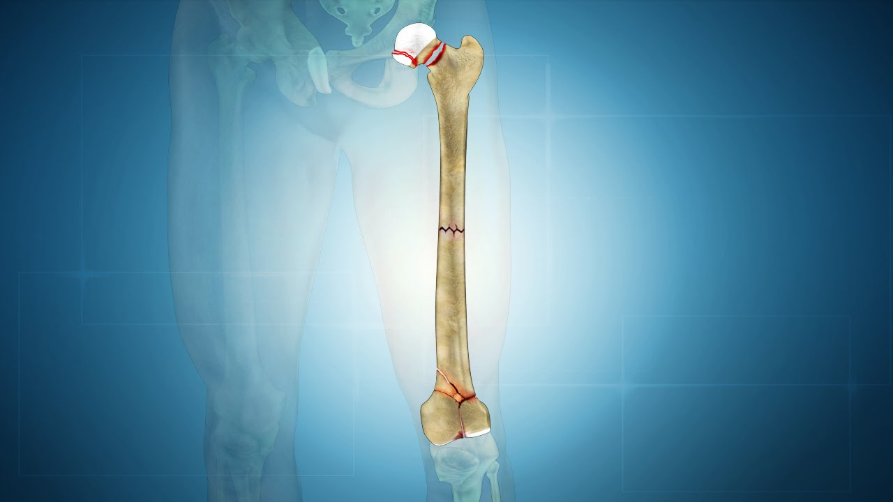 Femur Fracture Types Of Femur Bone Fracture Youtube