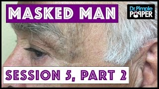 Return of The Masked Man: Blackhead Extractions! | Session 3