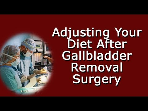 Adjusting Your Diet After Gallbladder Removal Surgery