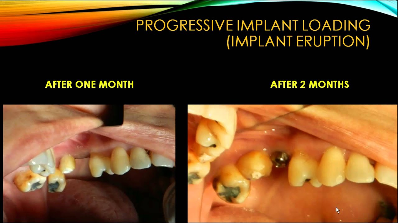 Full text] Progressive immediate loading of a perforated