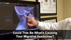 What Causes Migraine Headaches? - Dacula, GA Chiropractor: