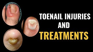 Toenail Injuries & Treatment