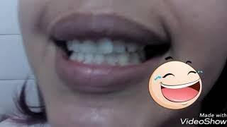 Violeta Genciana Dentes Best Video 2018