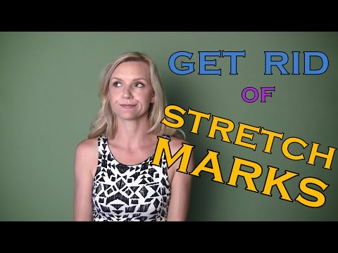 Get Rid Of Stretch Marks ★ How to Exercise, Diet, use cosmetics to Reduce appearance
