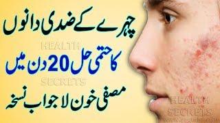 Chehre Ke Dano Ka Fori ilaj || Acne Home Remedy || Acne Treatment || Acne Causes || In Urdu/Hindi