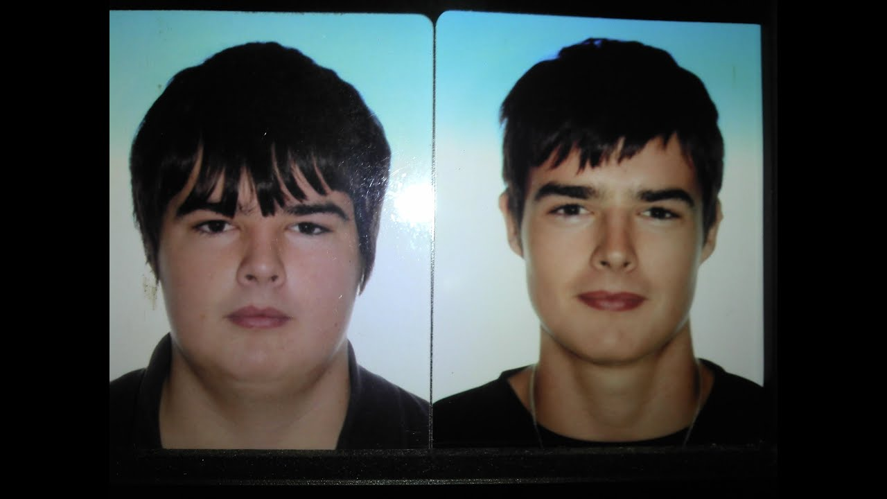 10 pound weight loss face chin