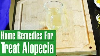HOW TO STOP ALOPECIA AREATA (Bald Patches) With Natural Home Remedies