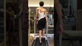 척추측만증 교정 : 보조기를 통한 일상생활 걷기동작 케…