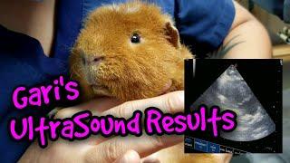 Gari's UltraSound Results!