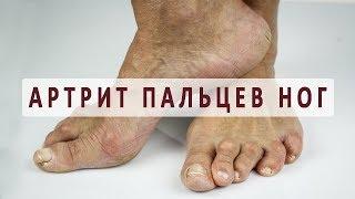 видео Бурсит большого пальца стопы: симптомы и лечение
